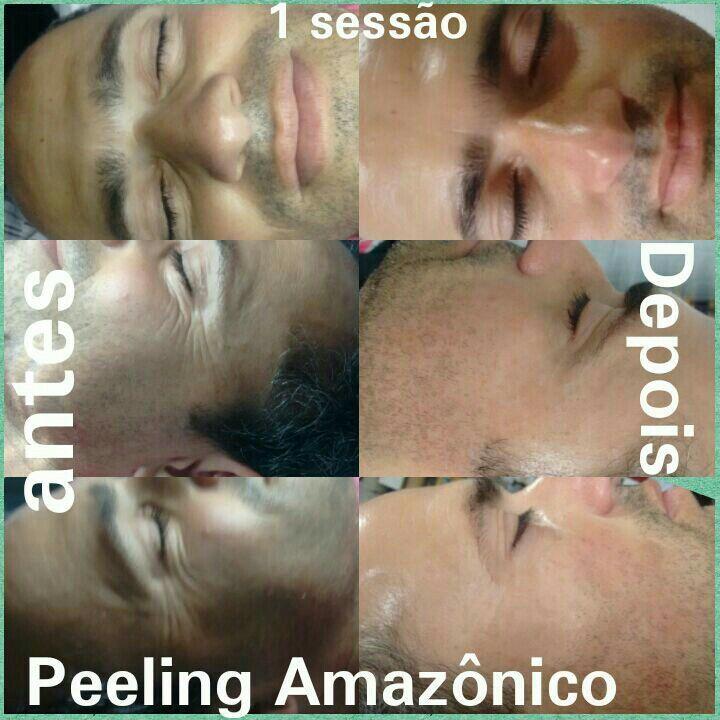 Tratamento de redução linhas expressão com peeling diamante, e peeling Amazônico estética esteticista depilador(a)