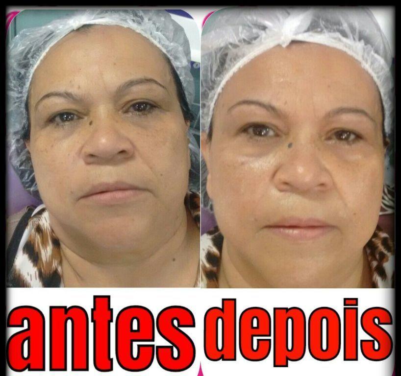 Limpeza de pele profunda com máscara de argila estética esteticista