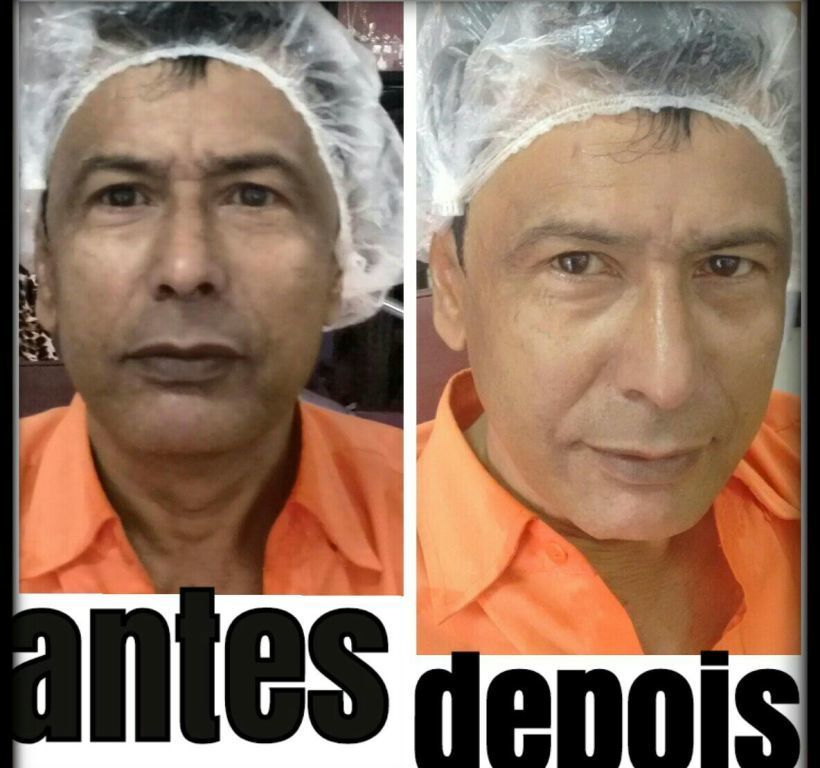 Limpeza de pele profunda estética esteticista massoterapeuta depilador(a) designer de sobrancelhas