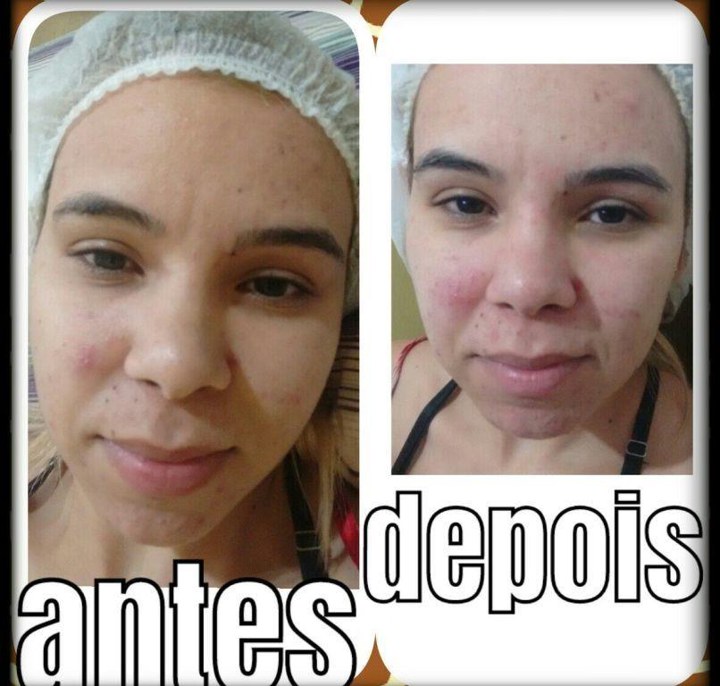 Limpeza de pele com máscara de argila estética esteticista massoterapeuta depilador(a) designer de sobrancelhas
