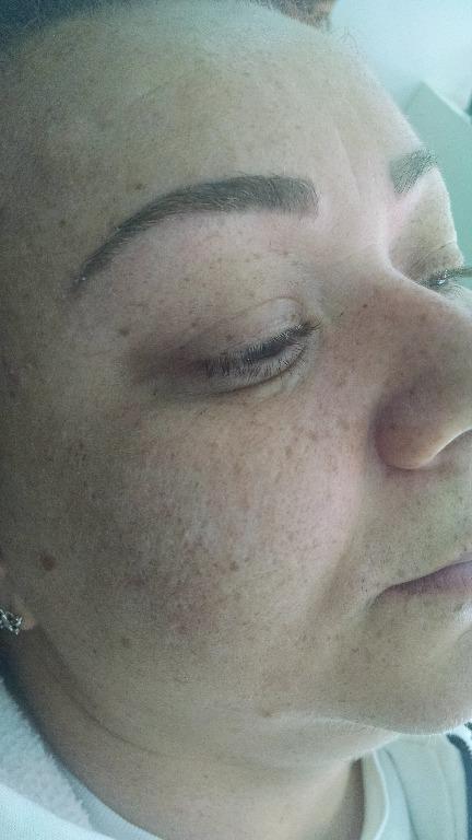 Após a cicatrização ( 6 dias depois do procedimento) depilador(a) designer de sobrancelhas micropigmentador(a)