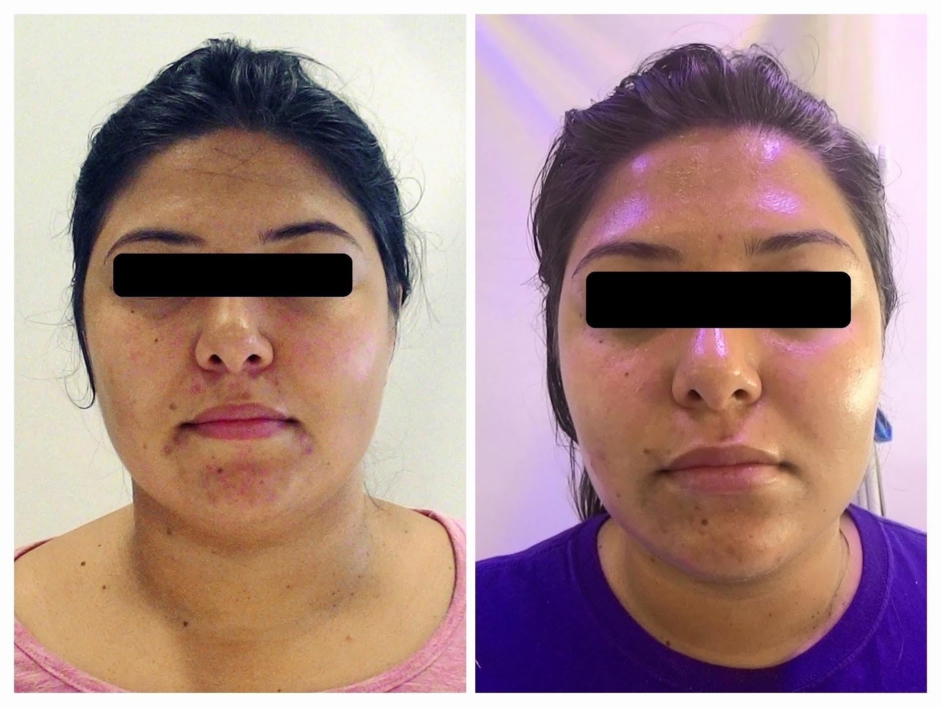 Tratamento para acne. estética esteticista