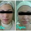Tratamento para acne.