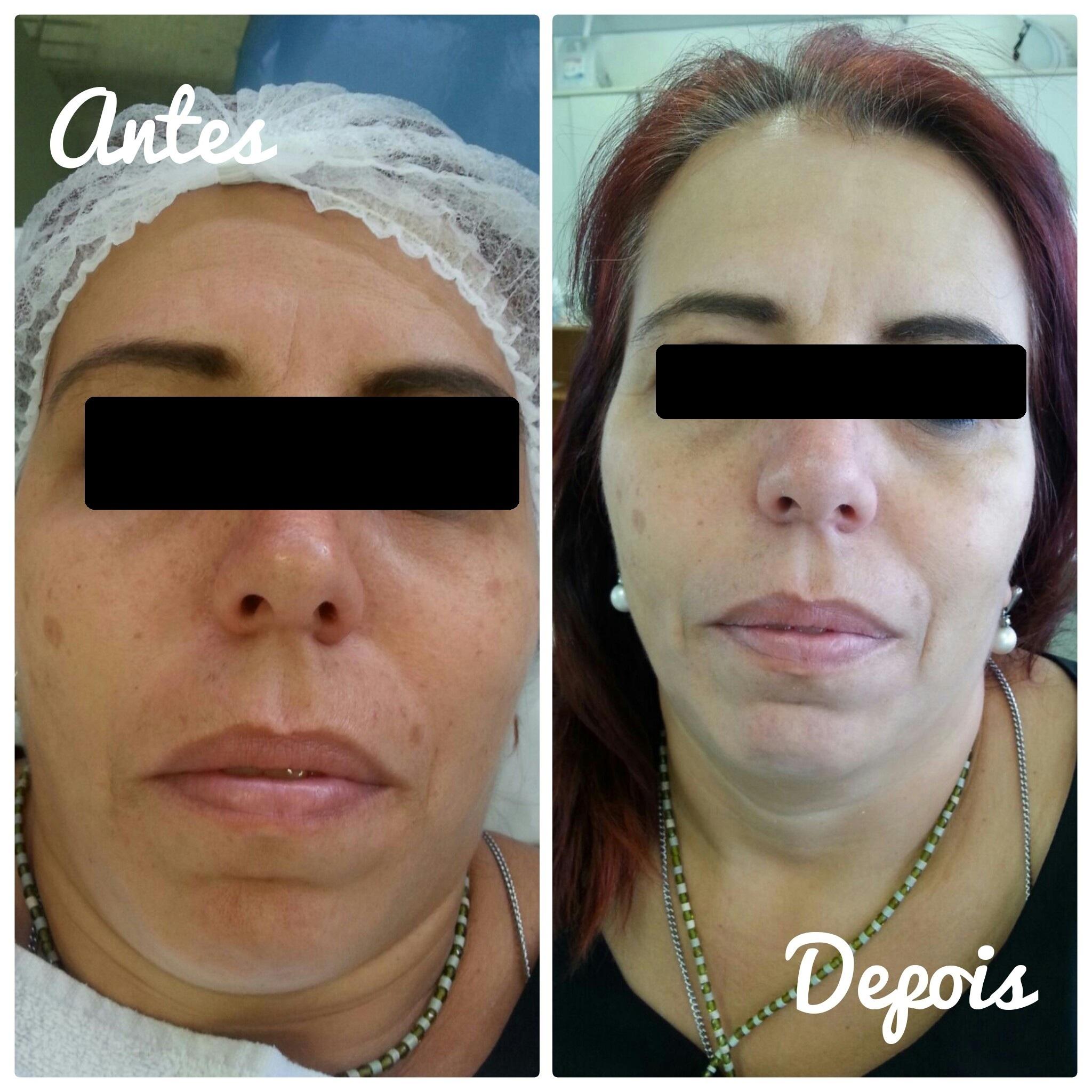 Limpeza de pele e revitalização facial. estética esteticista