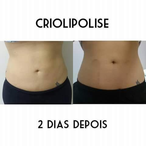 #criolipolise #resultado #2dias depois estética esteticista