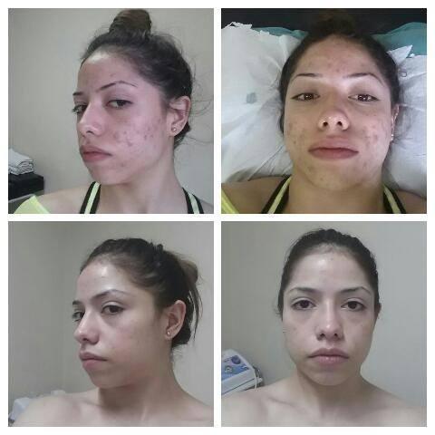 Tratamento para pele Acneica estética massoterapeuta