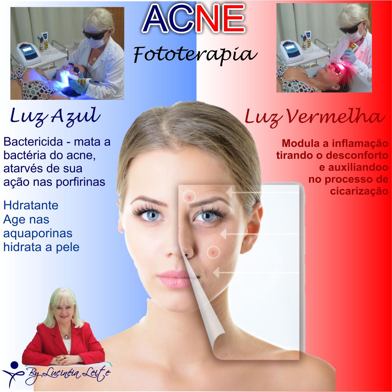 Fototerapia na Estética estética docente / professor(a)