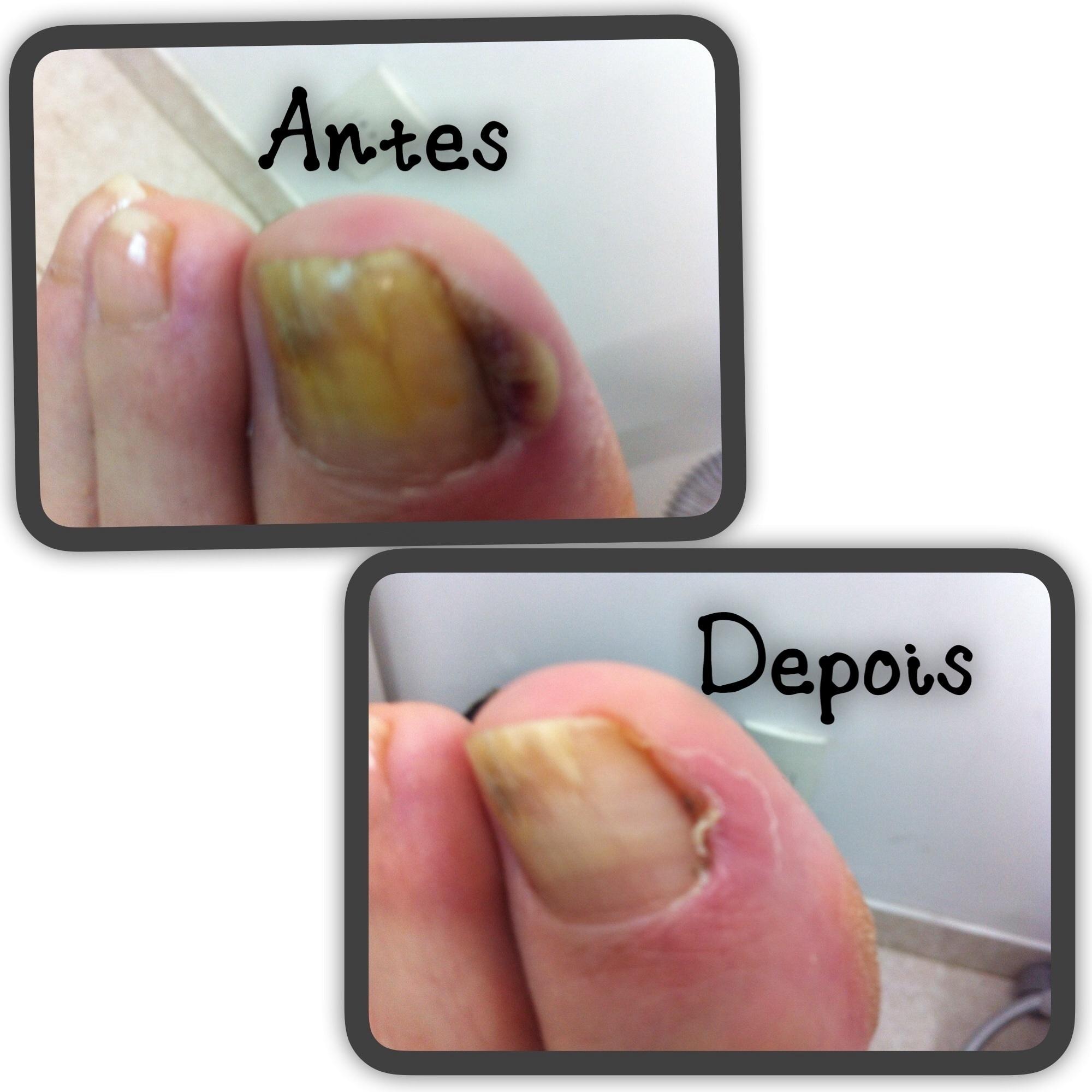 Desinfeção antes e depois do procedimento . unha podólogo(a)