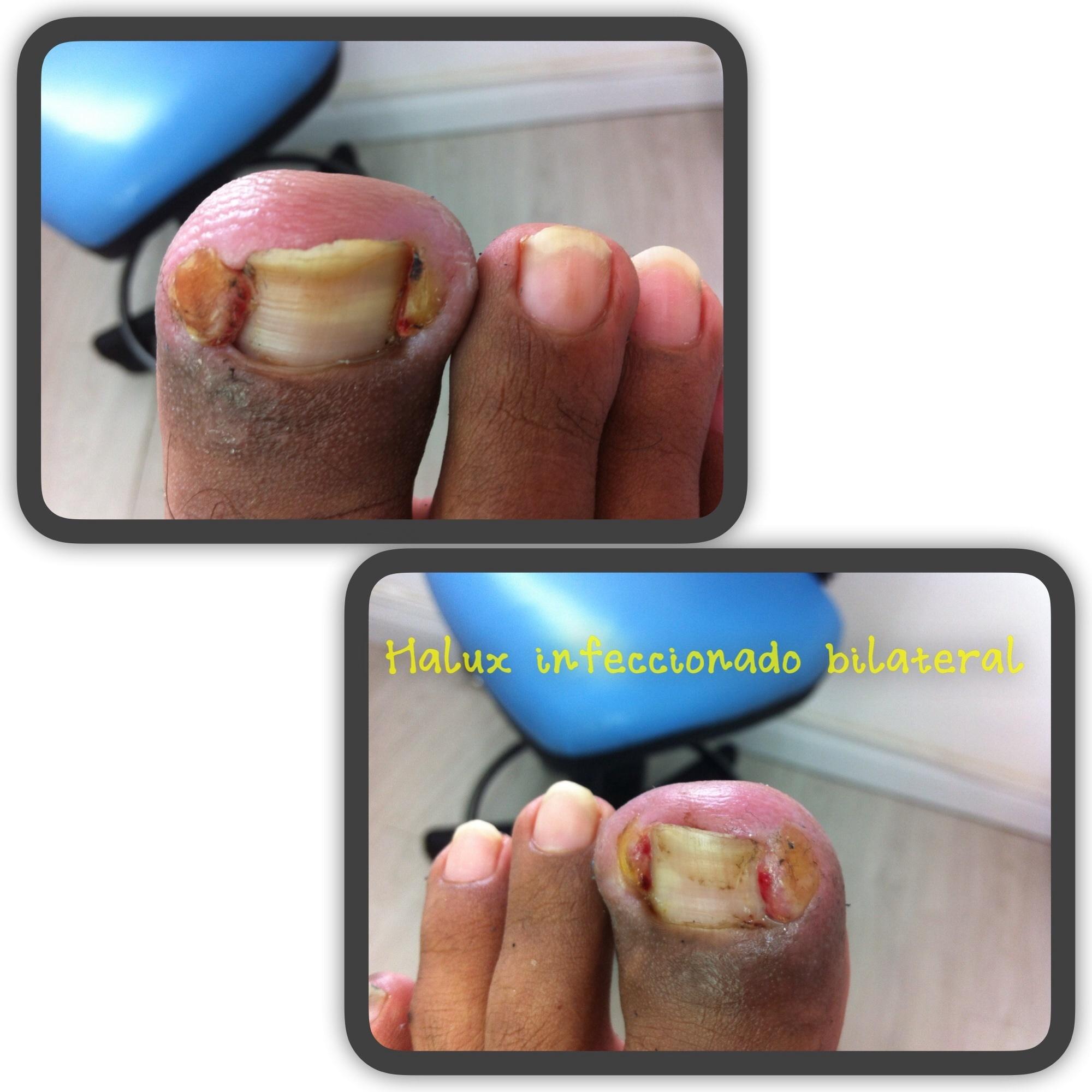 Unhas dos halux direito e esquerdo ,com infecção bilateral ambas. Paciente em tratamento . maquiagem podólogo(a)