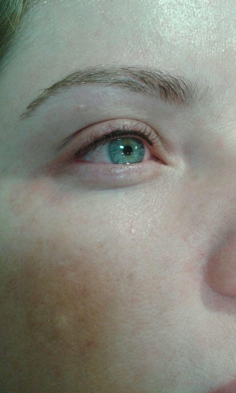 Resultados de delineador no superior do olho. estética esteticista naturólogo(a) micropigmentador(a)