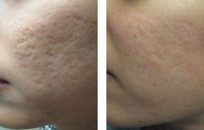 Tratamento com Peeling Rose de Mar para amenizar marcas de acne estética esteticista naturólogo(a) micropigmentador(a)