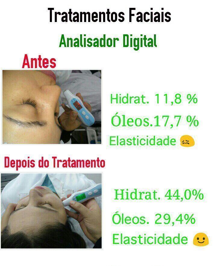 Aqui fazemos uma análise digital da sua pele,  E olha o antes e o depois dessa cliente , como mudou a hidratação a elasticidade estética esteticista