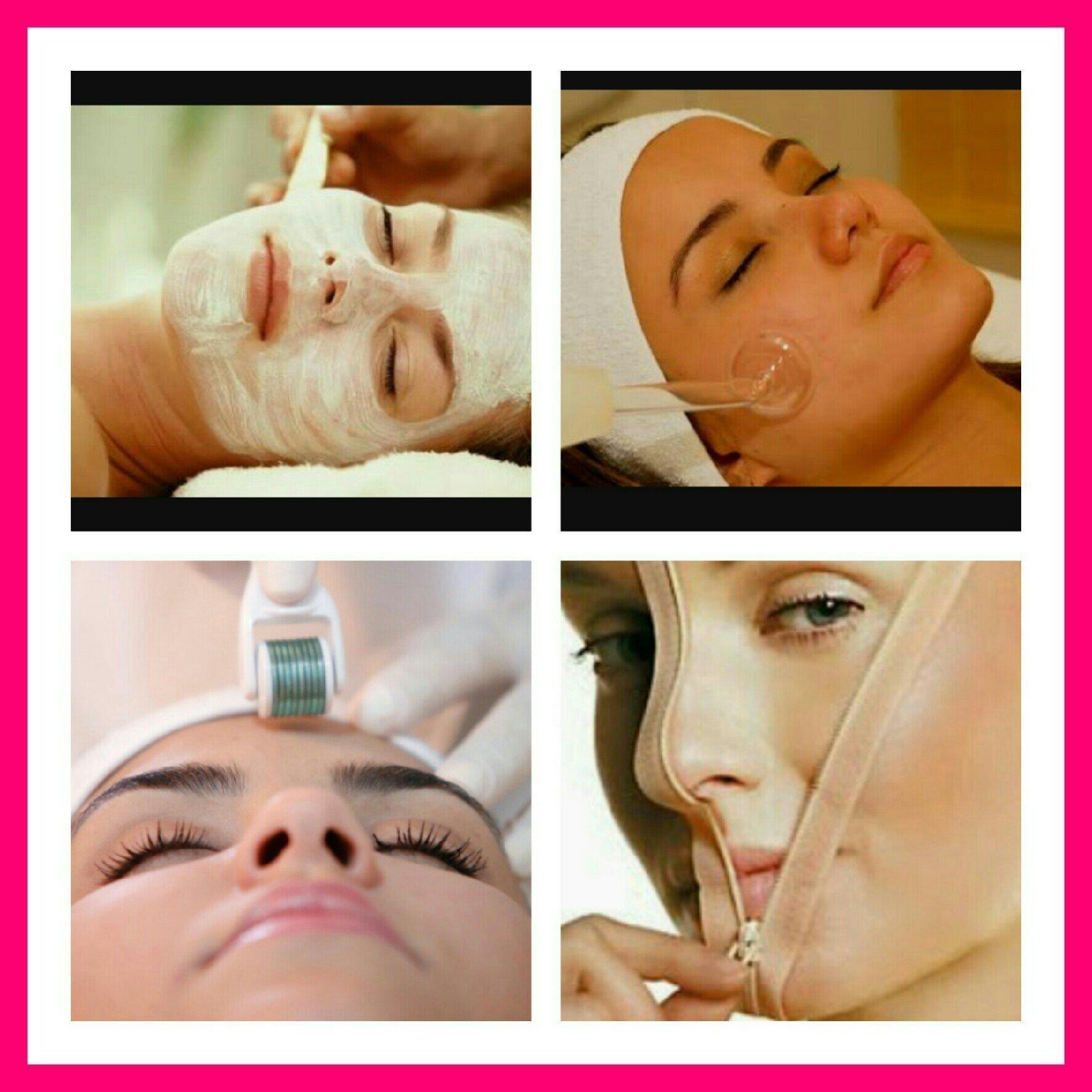 Tratamentos cicatrizes de acne, manchas, melasma, com Microagulhamento e Peeling. estética