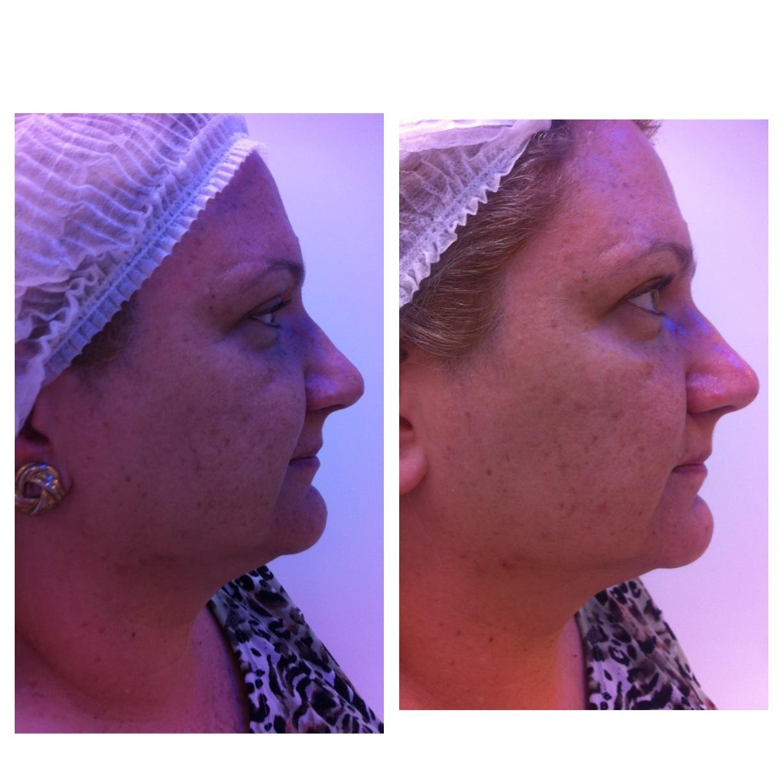 Antes e depois de um protocolo de peeling para marcas de expressão e uniformização da pele. estética esteticista