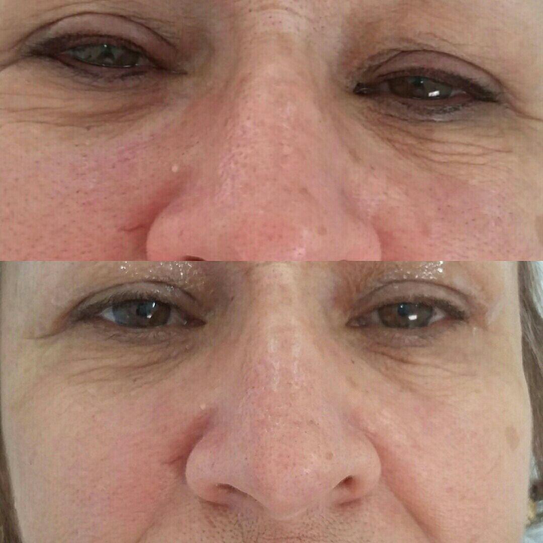 Maquiagem definitiva contorno do olhos. outros micropigmentador(a)