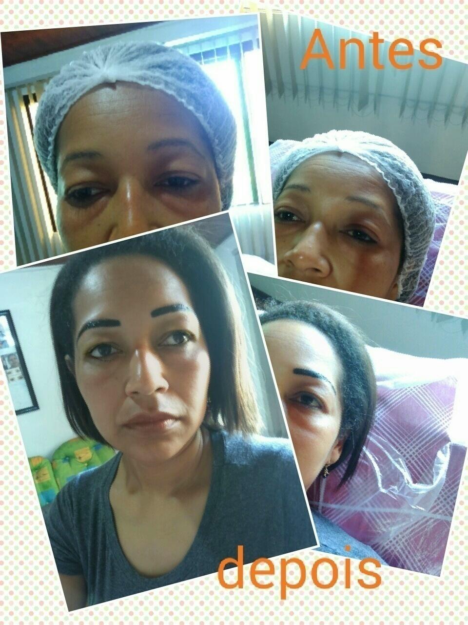 Micropigmentaçao sobrancelha maquiagem dermopigmentador(a)