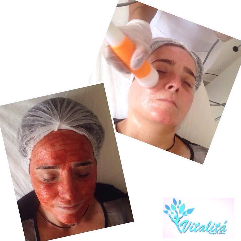 Protocolo de Rejuvenescimento com Peeling de Diamante  + Vitamina C + Máscara firmadora + Radiofrequência. estética esteticista