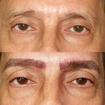 Micropigmentação fio a fio 4D (microblading)