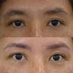 Design de sobrancelhas com simetria facial.