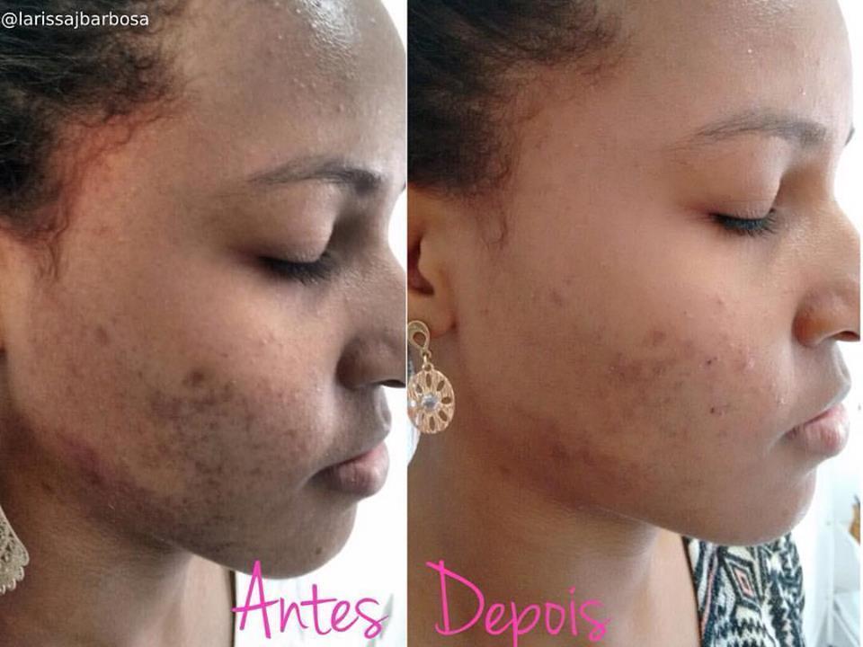 Resultado em 2 sessões de Peeling Químico com ácido glicólico. É bem nítido a melhora das manchas de acne,  melhora do aspecto da pele e clareamento. estética esteticista