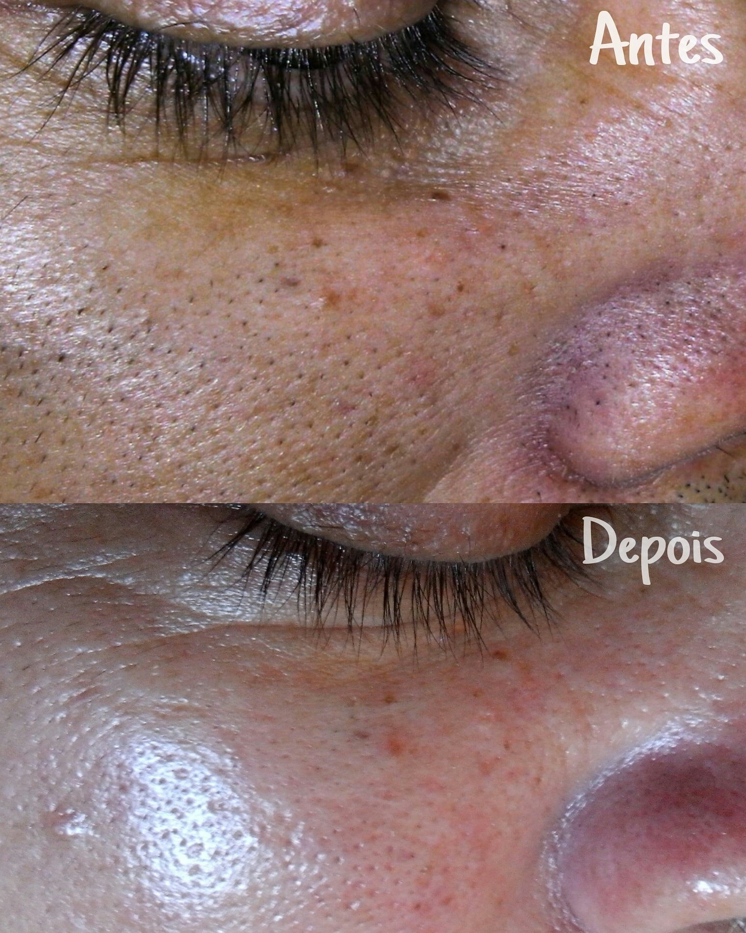 Limpeza de Pele : Antes e Depois 💆 #EstéticaFacial #estética #limpezadepele estética esteticista