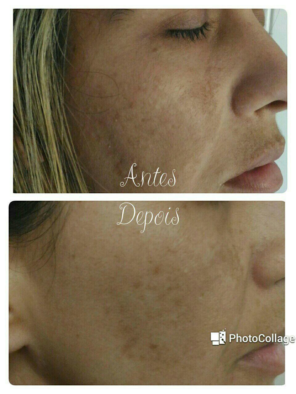 Tratamento para acne e melasmas. estética recepcionista