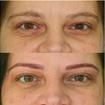 Micropigmentação fio a fio hiper realista (microblading)