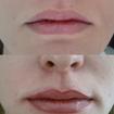Micropigmentação de contorno de lábios