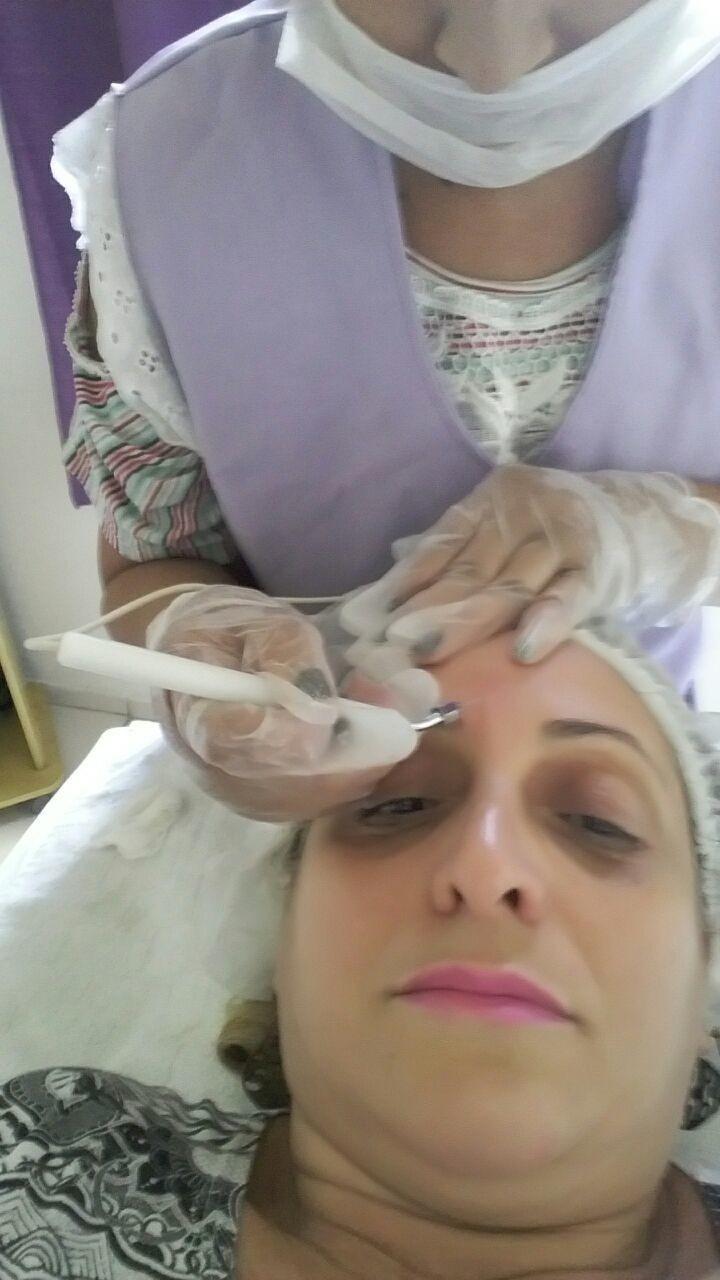 Tratamento com microocorrentes para rugas, marcas de expressões e estrias. estética esteticista recepcionista
