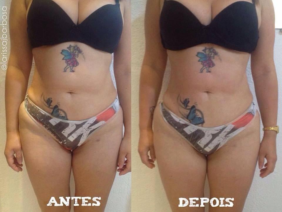 Tratamento em andamento para gordura localizada. estética esteticista