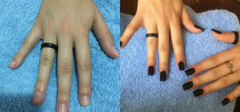 Alongamento de unha de Gel  unha depilador(a) manicure e pedicure recepcionista