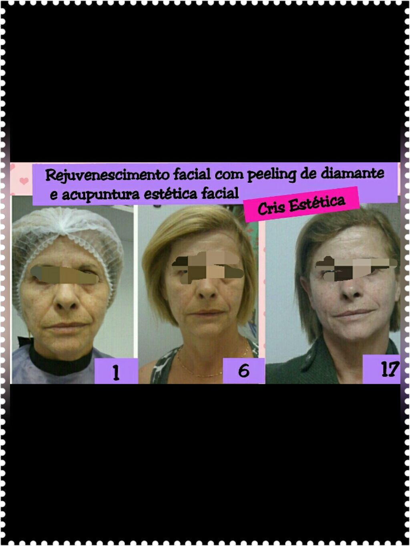 esteticista terapeuta acupunturista docente / professor(a) designer de sobrancelhas maquiador(a)