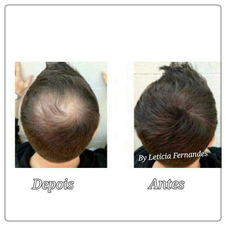 micropigmentacao capilar outros cabeleireiro(a) maquiador(a) barbeiro(a) designer de sobrancelhas dermopigmentador(a)