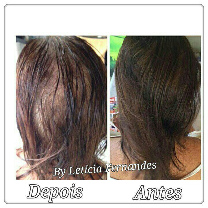 micropigmentacao capilar ... outros cabeleireiro(a) maquiador(a) barbeiro(a) designer de sobrancelhas dermopigmentador(a)
