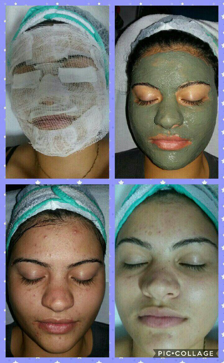 Limpeza de Pele estética esteticista cabeleireiro(a)