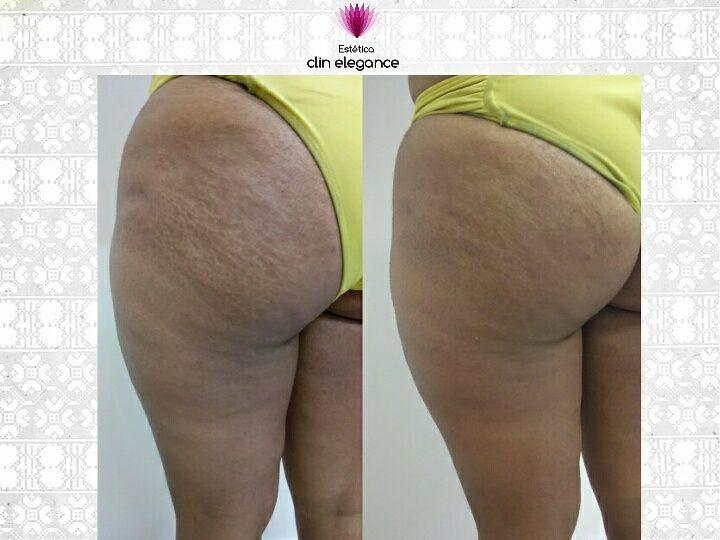 Tratamento anti-celulite Lipofeme.  Com 3 sessões já se obteve a melhora do tecido e da aparência da celulite. estética esteticista