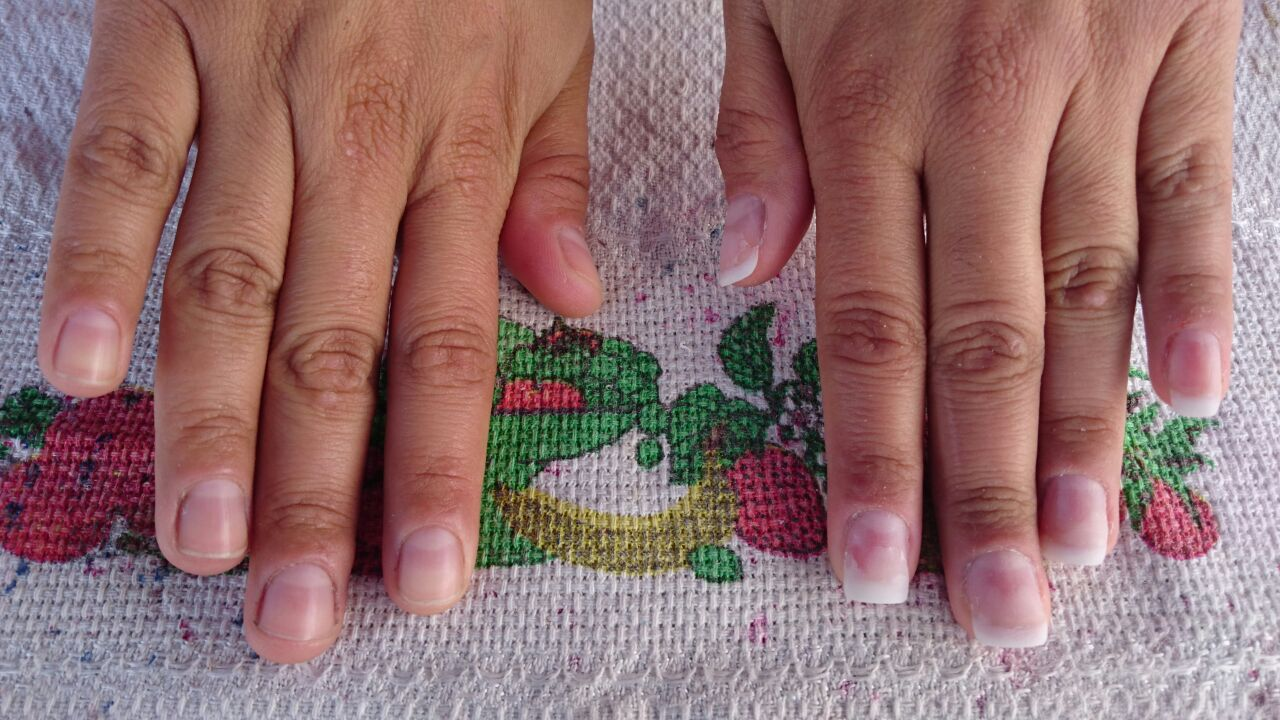 Unha agrilfix antes e depois da colagem e do po acrílico .... unha manicure e pedicure