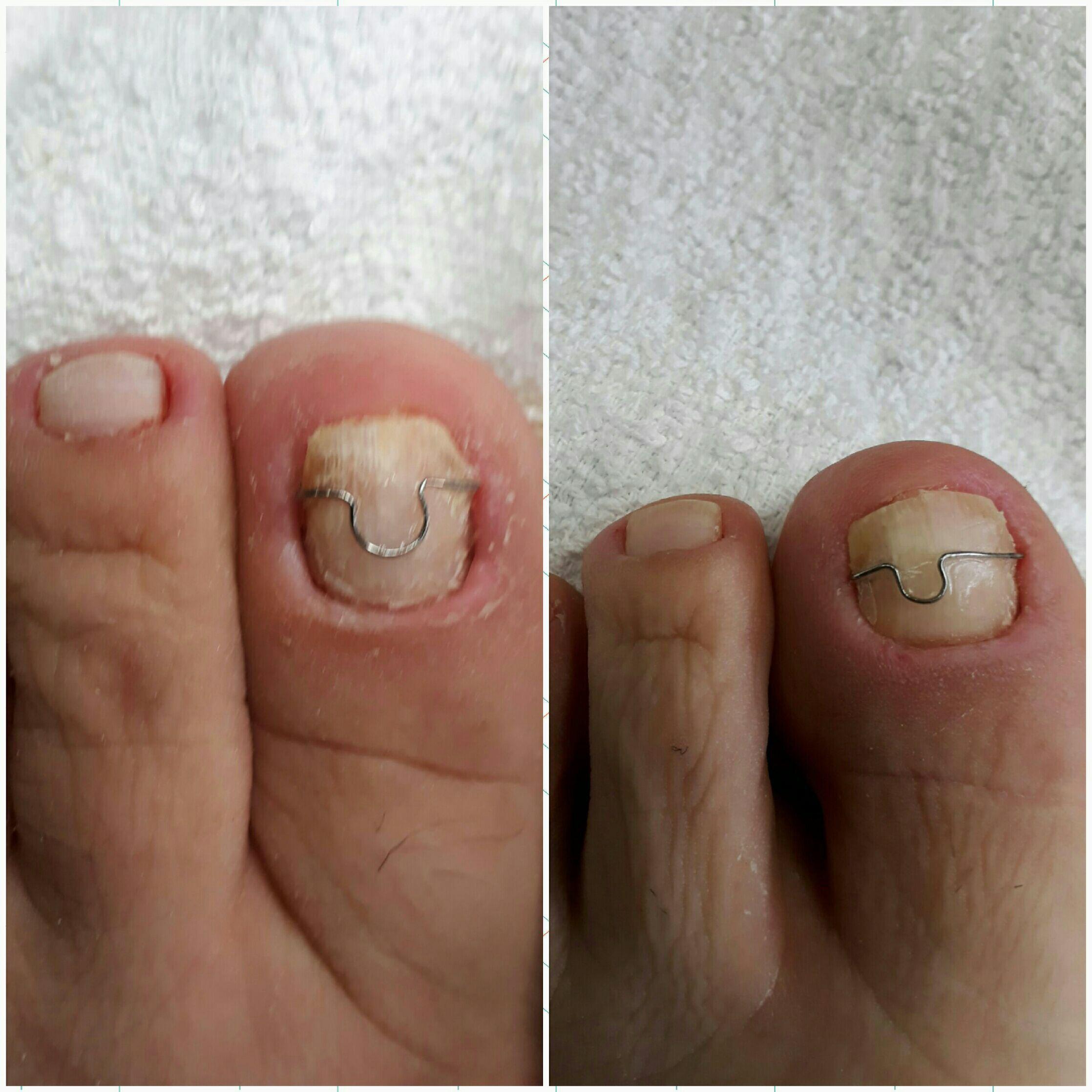 Correção das unhas  (lâminas) outros podólogo(a)