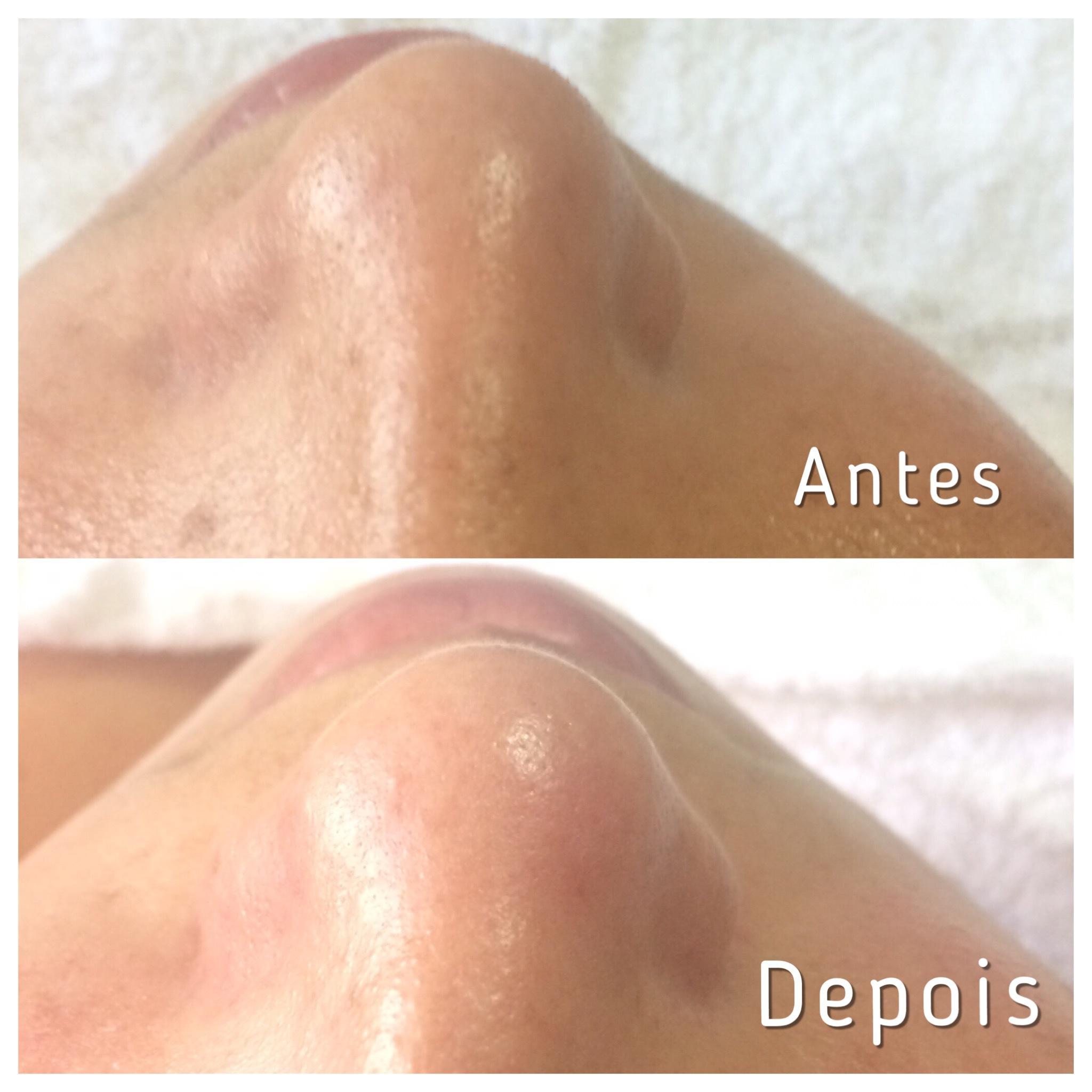 Limpeza de Pele  - Extração dos comedões.  limpeza de pele profunda. estética esteticista maquiador(a) designer de sobrancelhas manicure e pedicure