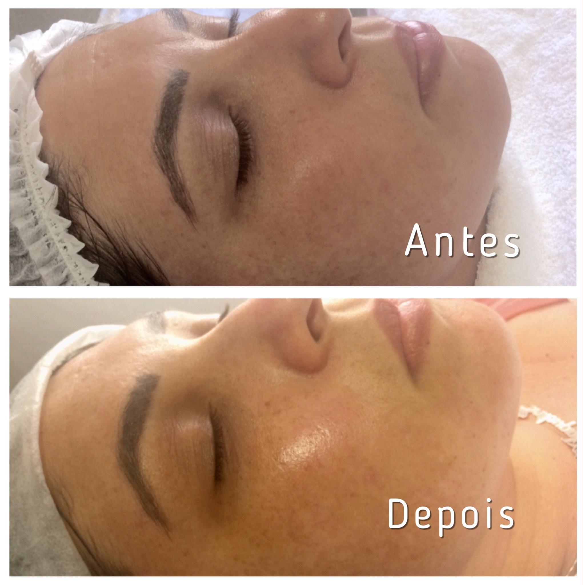 Limpeza de Pele ,  revitalização  facial. estética esteticista maquiador(a) designer de sobrancelhas manicure e pedicure
