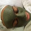 Limpeza de Pele ,  Tratamento com Argila verde, pele Acneica.