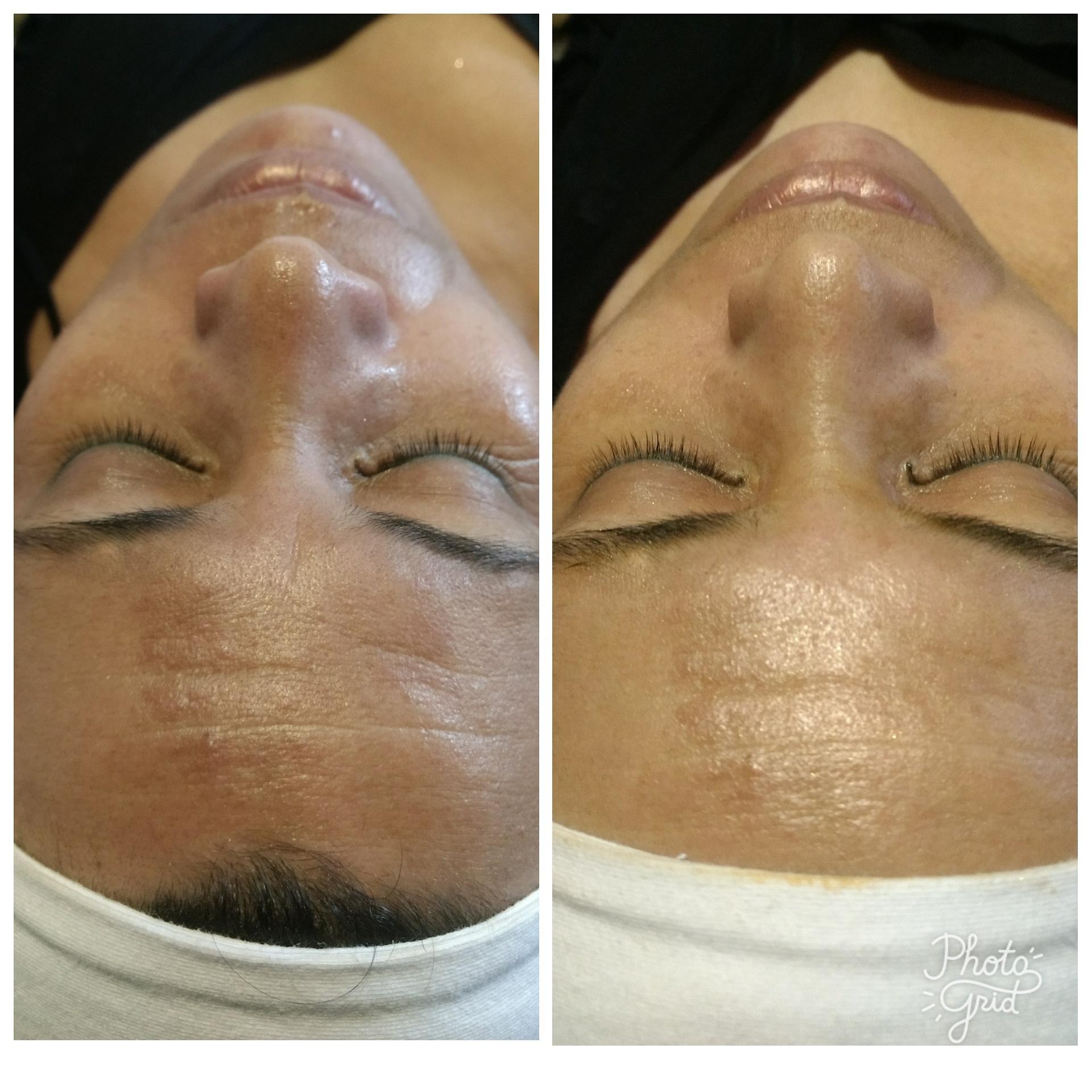 1° sessão de peeling rejuvenescedor e iluminador ❤️ estética esteticista designer de sobrancelhas depilador(a)