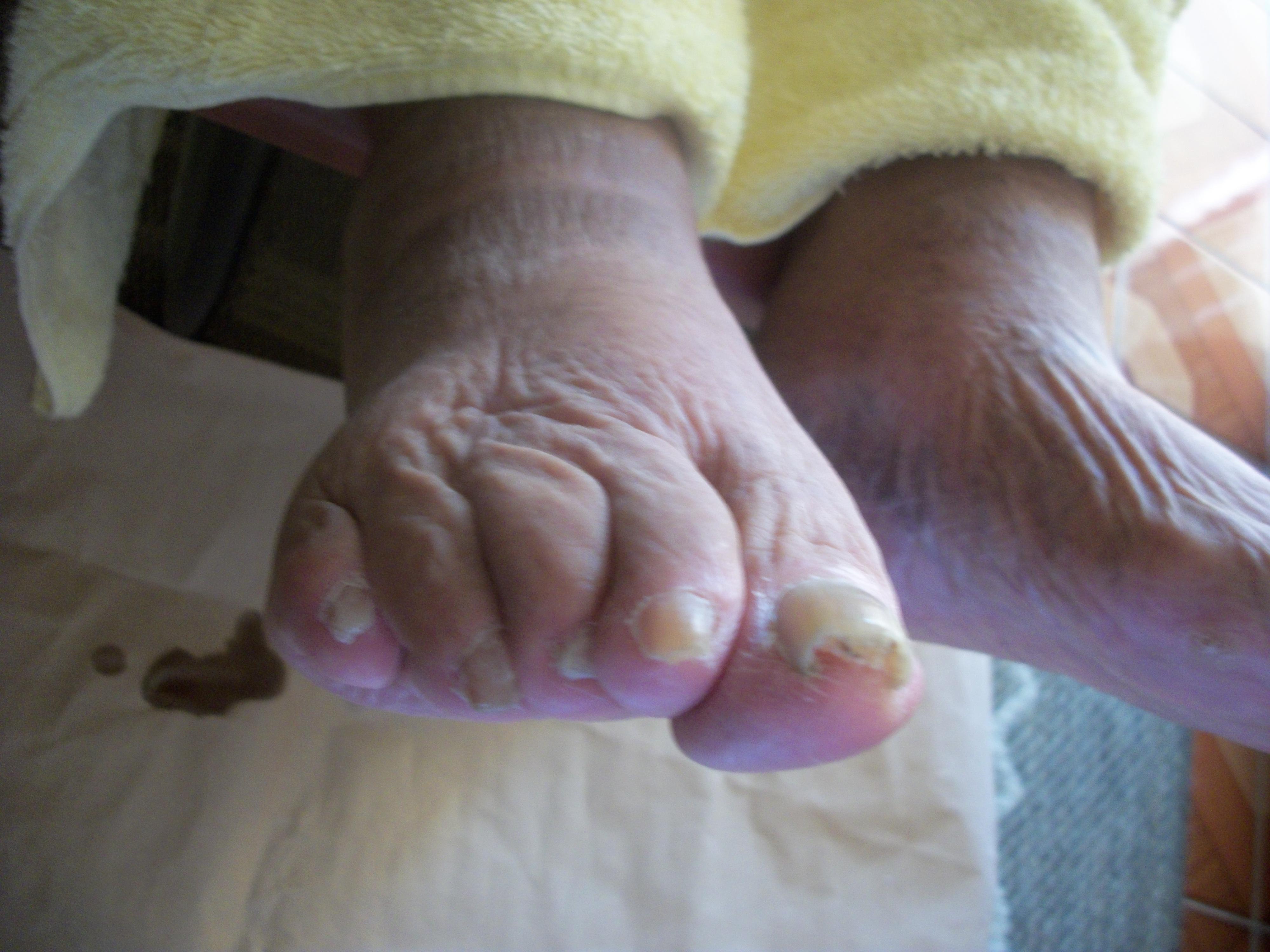 Idosa 90 anos  - Pé diabético, neuropatias, amputações e úlcera, onicomicose presente.  **Foto antes de iniciar o tratamento.  unha podólogo(a)