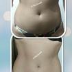 Tratamento para redução de medidas e gordura localizada...