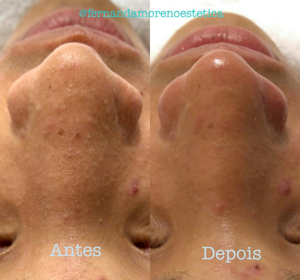Limpeza de pele antes e depois! Adeus de nariz de Moranguinho 😁 💆 estética esteticista designer de sobrancelhas micropigmentador(a) cosmetólogo(a)