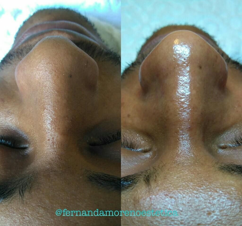 Limpeza de pele antes e depois!  Pele limpa, renovada e uniforme 😉 estética esteticista designer de sobrancelhas micropigmentador(a) cosmetólogo(a)