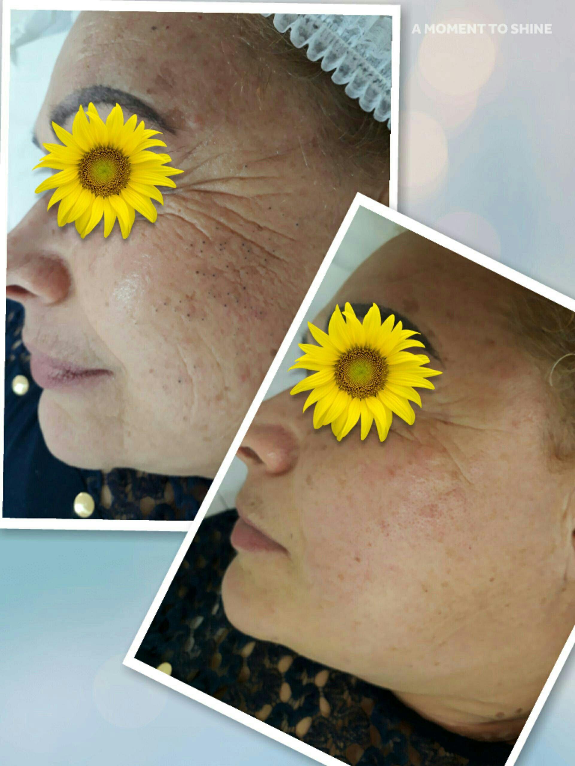 Limpeza de pele com extração de cravos e peeling inibidor enzimatico estética esteticista depilador(a) designer de sobrancelhas micropigmentador(a)