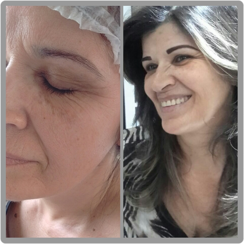 Micropigmentação (técnica compactada) outros micropigmentador(a) cabeleireiro(a) depilador(a) designer de sobrancelhas
