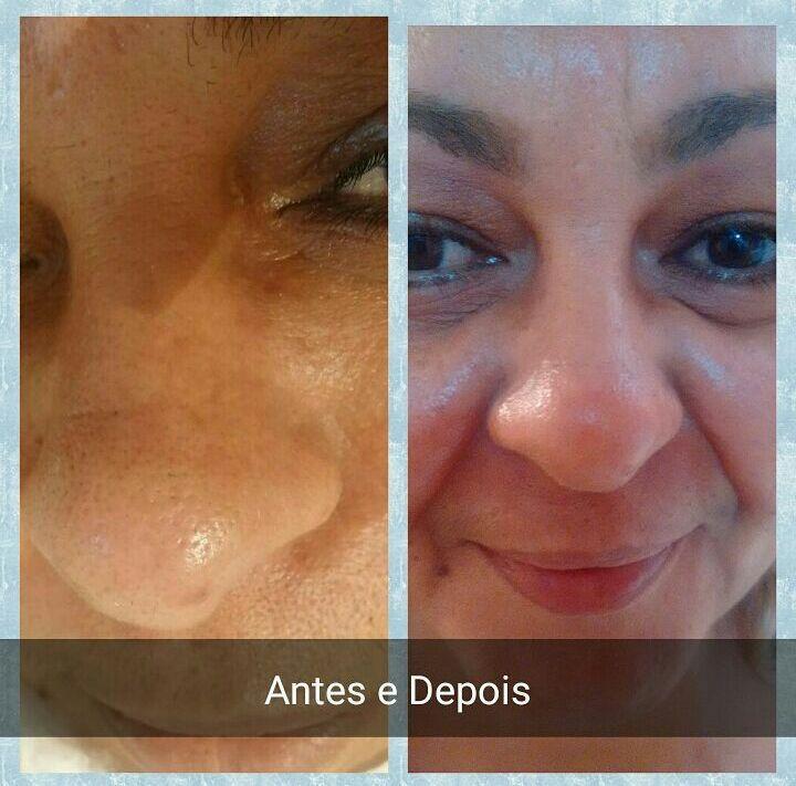 Limpeza de pele com extração esteticista designer de sobrancelhas micropigmentador(a)