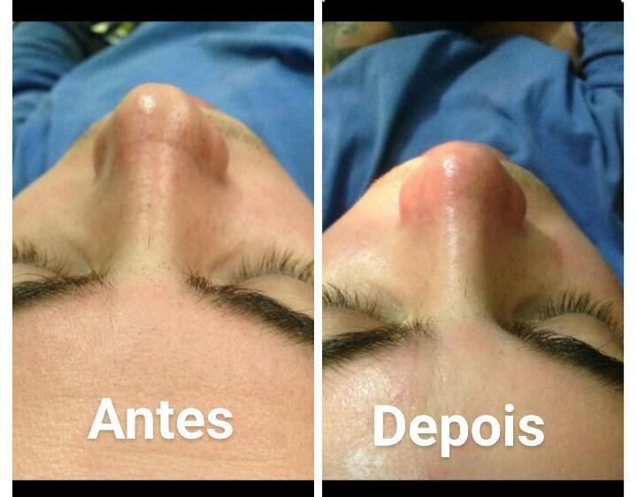 Limpeza de pele profunda ! estética esteticista massoterapeuta